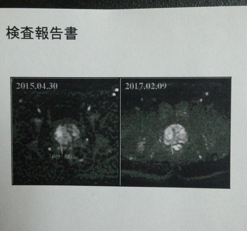 前立腺写真.jpg